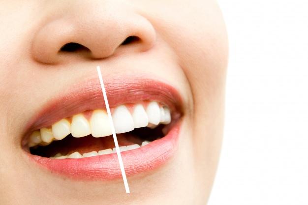 Ağız Ve Diş Sağlığında En İyi Pendik Diş Kliniğini Tercih Edin!